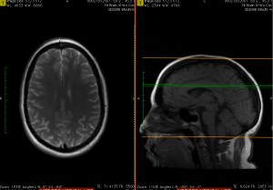 Magnetic resonance imaging (MRI) is the topic of discussion.